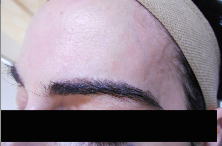 Reconstruction of eyebrows with Revision-FUE.