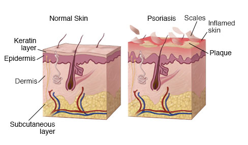 Scalp Psoriasis : Everything You Need to Know