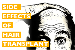 10 Side effects of Hair Transplant Surgery
