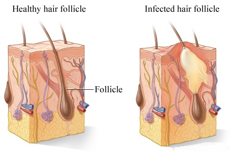 Folliculitis – The Important Facts