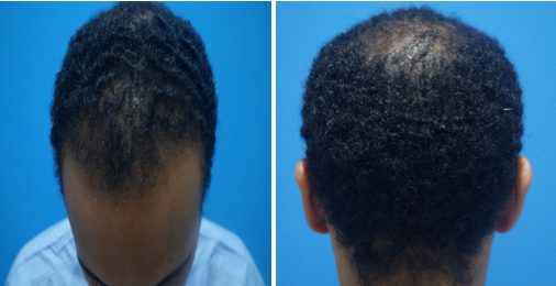 Hair Transplant in Egyptian Patients – A Case Report