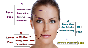 Botox injections Where You can Use and Benefits
