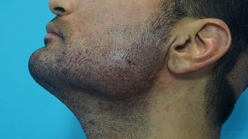 Hair Transplantation in Scarring Beard Face cause by ACNE