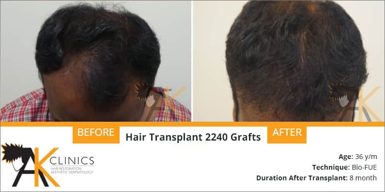 2240 Grafts With Bio Fue Technique Result After 8 Months
