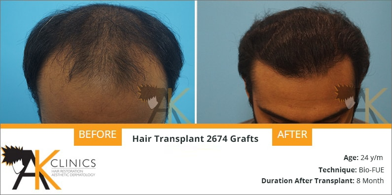24 Year Old Patient Result with BIO FUE Technique
