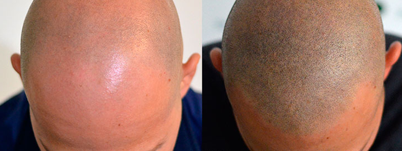 Scalp Micro Pigmentation – Why It Could Be The Right Choice For You