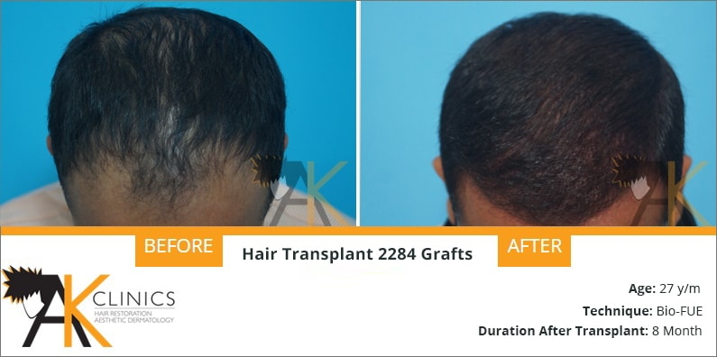 BIO FUE Hair Transplant Result After 8 Months – 2284 Grafts