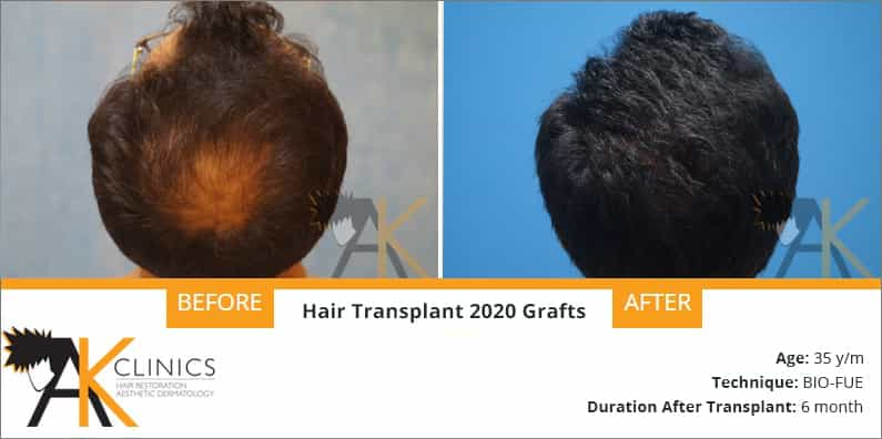 2020 Grafts Hair Transplant Surgery Result after 6 Months