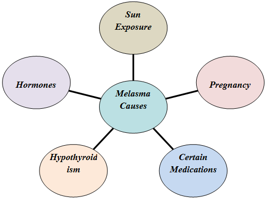 Treatments that Work as Miracle for Melasma
