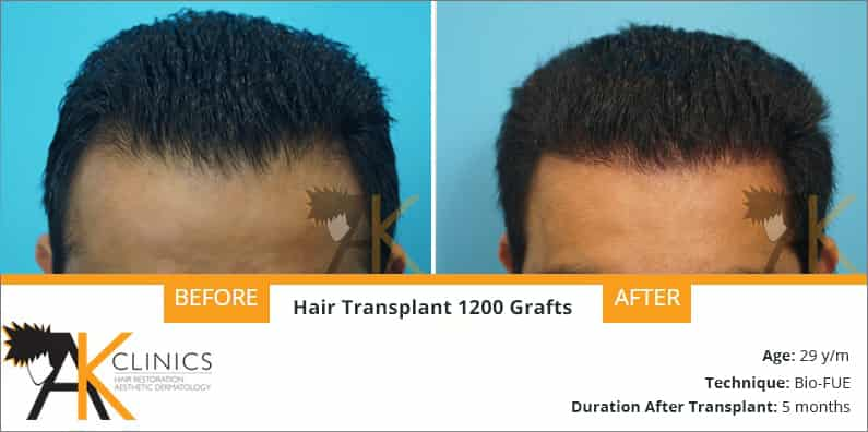 1200 Grafts With Bio FUE Technique Result After 5 Months