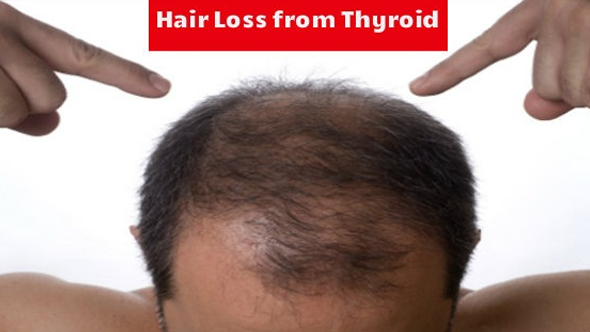 Hair Loss and Thyroid: Treatments to Combat Thyroid Induced Hair Loss