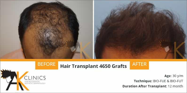 4650 Grafts With FUE+FUE Technique Result After 1 Year