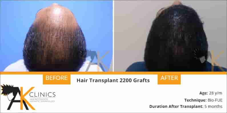Hair Transplant Result of 2200 Grafts With Bio Fue Technique