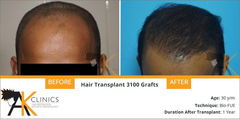 Hair Transplant Result – 3100 Grafts BIO FUE Technique