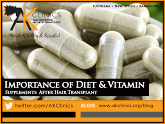 Will diet and vitamin supplements help with hair growth after the FUE?