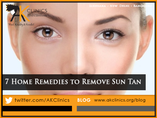 7 Best Home Remedies to Remove Sun Tan Naturally