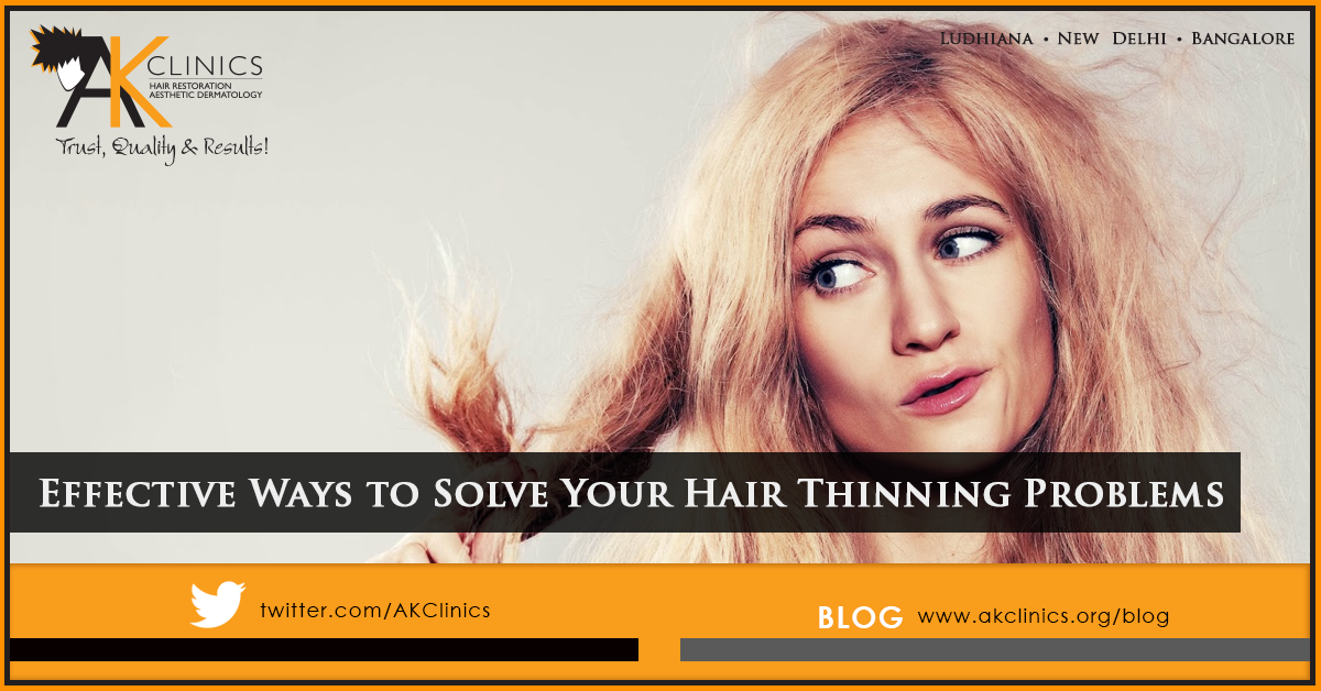 Effective Ways to Solve Your Hair Thinning Problems
