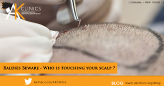 Baldies Beware – Who is touching your scalp ?