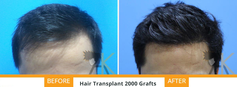 Result of our patient's good result 2000 grafts