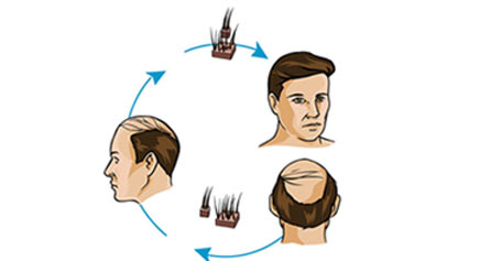 Hair Restoration Treatment