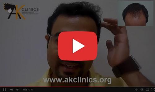 Hair Testimonials Transplant Videos