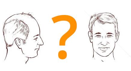 Why Hair Transplant