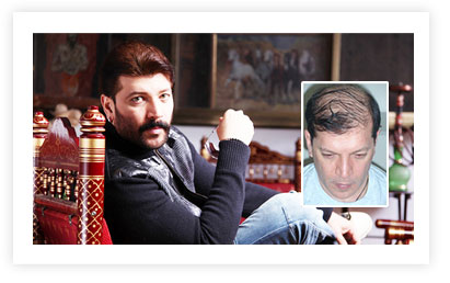 Aditya Pancholi Hair Transplant pictures Before and After