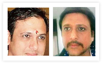 Govinda Hair Transplant pictures Before and After