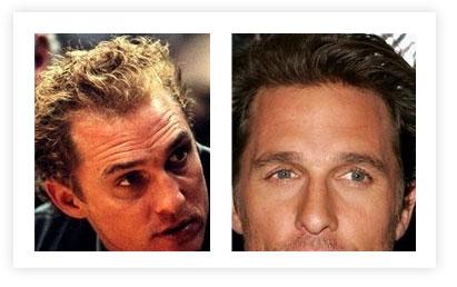 Matthew Mcconaughey Hair Transplant pictures Before and After