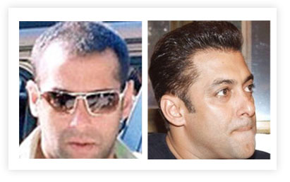 Salman Khan Hair Transplant pictures Before and After