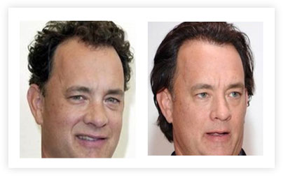 Tom Hanks Hair Transplant pictures Before and After