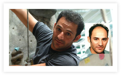 Usman Hair Transplant pictures Before and After