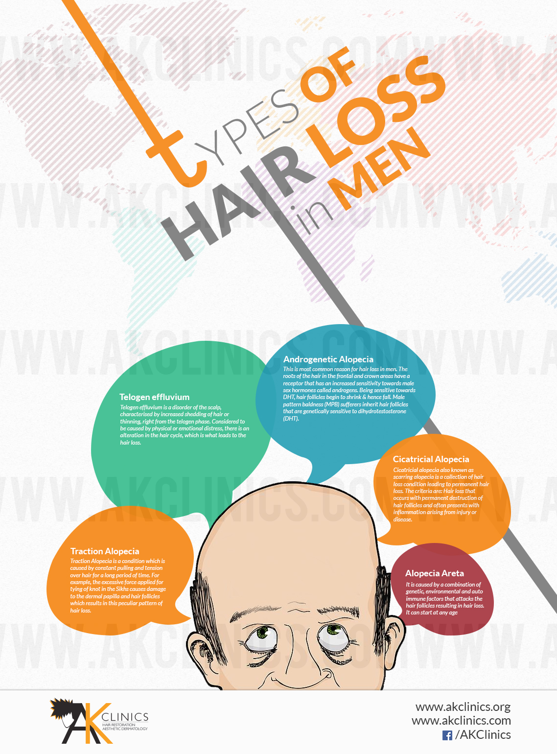 Types of Hair Loss in Men Infographic