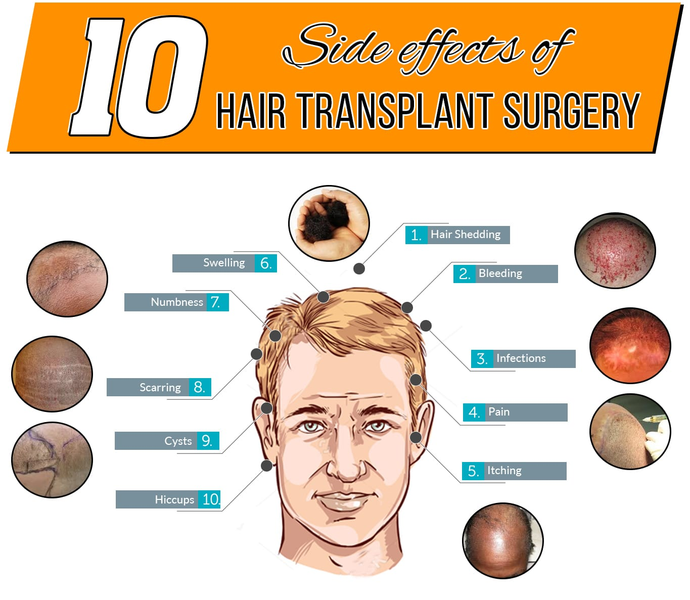 Side Effects of Hair Transplant Surgery