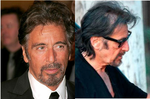 Al-Pacino-Hair transplant