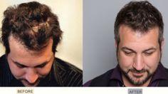 Joey Fatone hair transplant