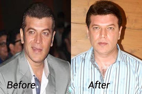 aditya pancholi hair transplant
