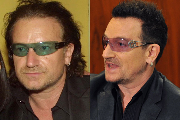 bono-hair-transplant-before-and-after