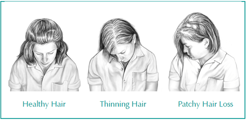 hair loss thyroid
