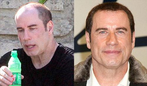 john-travolta-hair-transplant