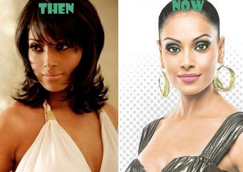 Bipasha-Basu surgery before and after photos