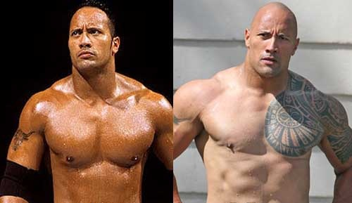 Dwayne-Johnson cosmetic surgery pics