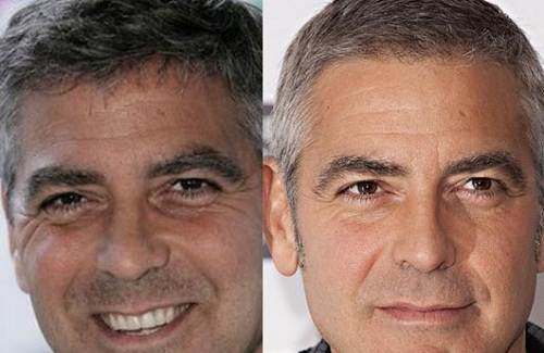 George Clooney surgery pics
