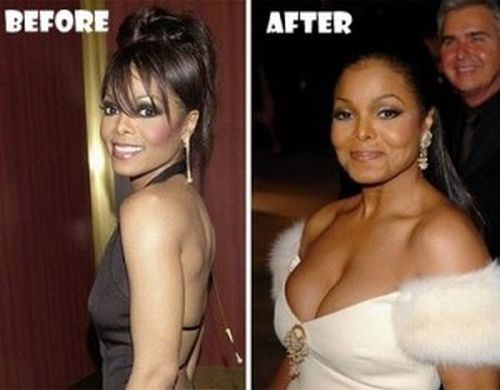 Janet-Jackson-plastic-surgery-before-and-after