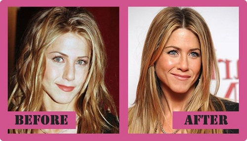 Jennifer-Aniston plastic surgery photos