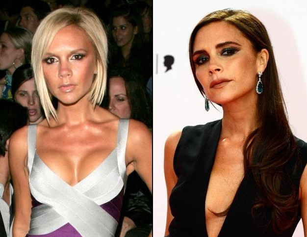Victoria-Beckham-Breast-Implants
