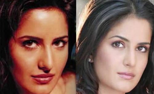 katrina kaif before and after surgery pics