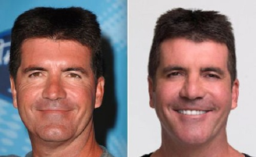 simon-cowell surgery before and after