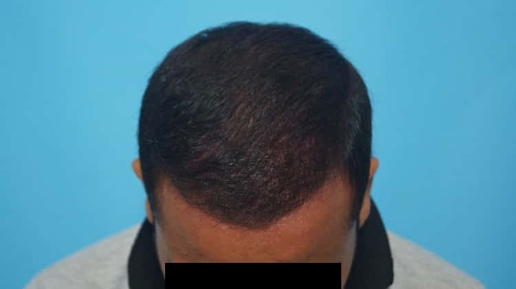 Result after 8 months (3)-min