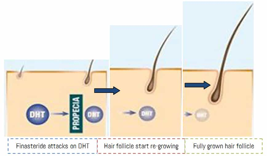 How Finasteride stimulates Hair re-growth